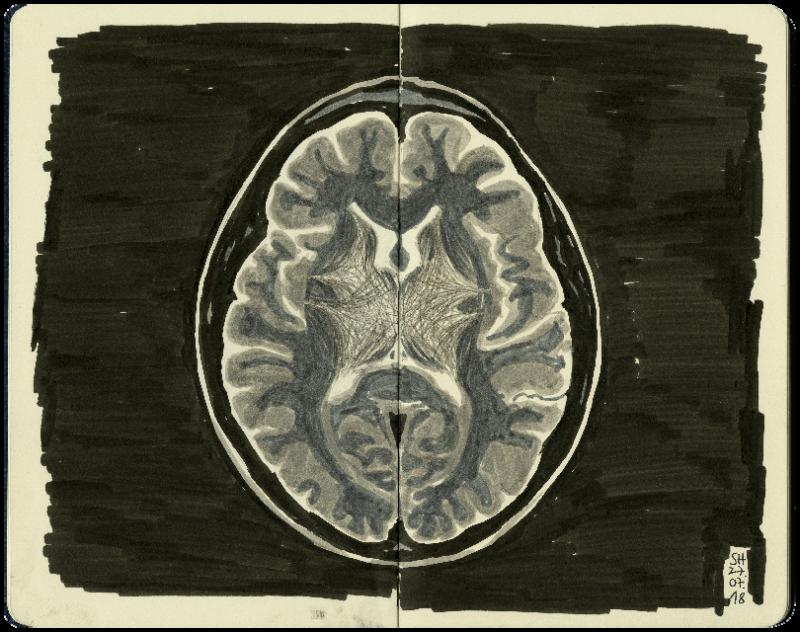 Magnetresonanztomografie vom Gehirn